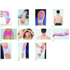 چسب عضله کنزیوتیپ